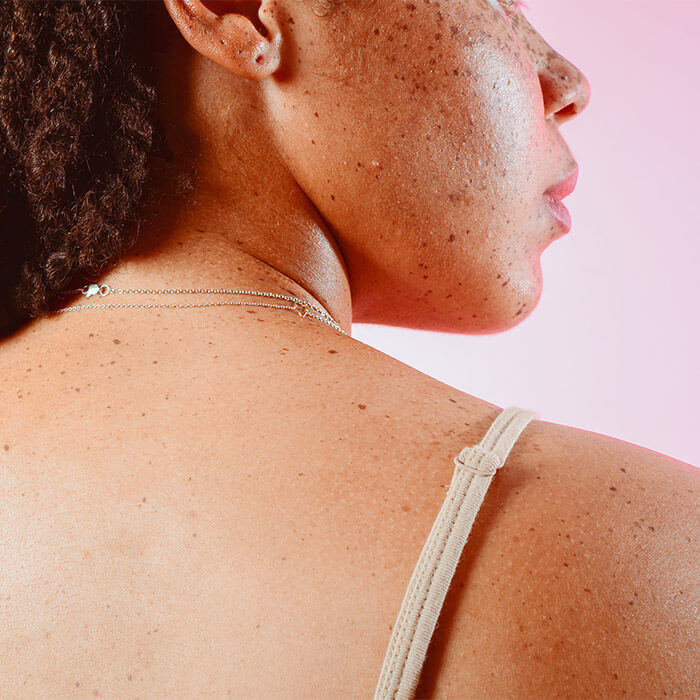 How To Get Rid Of Back Acne 7 At Home Remedies To Try Ipsy