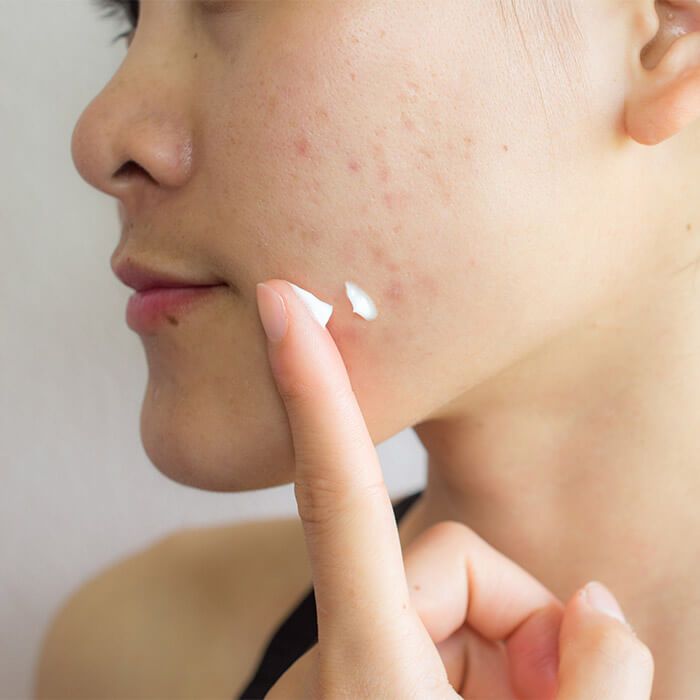 Close-up of a woman with acne putting cream on her face